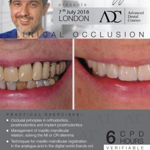 Hands-on Course Clinical Occlusion with Carlo Poggio